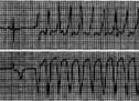 Холтерівське моніторування: достовірна діагностика захворювань серця