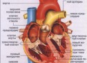 Аневризма серця — ускладнення інфаркту
