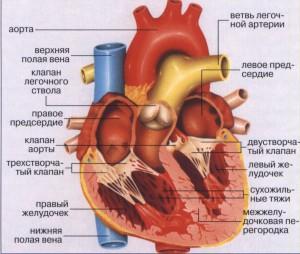Аневризма серця - ускладнення інфаркту