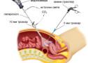 Лапароскопія в урології
