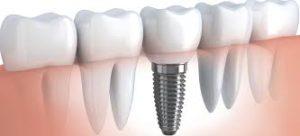 v-kakix-sluchayax-neobxodimo-protezirovanie-v-klinike-healthy-dent