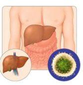 Последствия от гепатита С