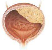 Рак мочевого пузыря у представителя сильного пола